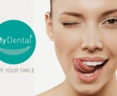 REVIEW: Teeth Whitening @ My Dental Clinic